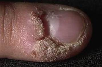 Plantar Wart Treatment & Removal Perth - Ph 08-9319-3030 - Book Online
